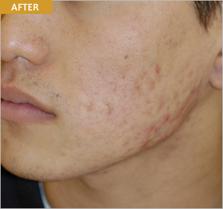 plasma_acne2_after.jpg