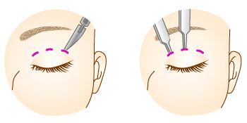 Formation of the double eyelid | 赤井クリニック