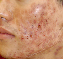 plasma_acne_progress2.jpg